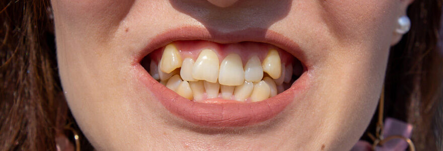 dentition mal alignée
