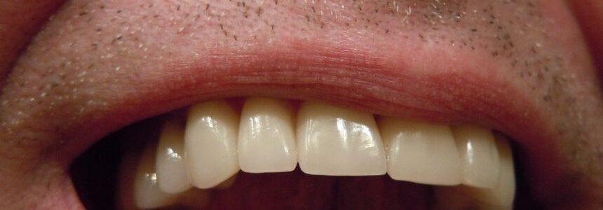 Gros plan sur une bouche souriante dotée d'un appareil dentaire